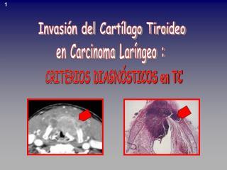 Invasi�n del Cart�lago Tiroideo