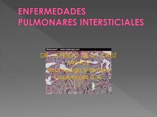 ENFERMEDADES PULMONARES INTERSTICIALES