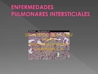 ENFERMEDADES PULMONARES INTERSTICIALES
