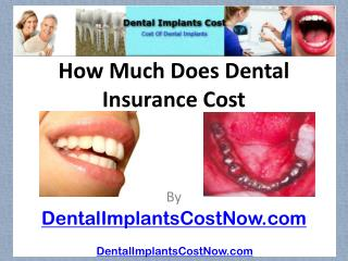 [How Much Does Dental Insurance Cost]