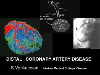 DISTAL   CORONARY ARTERY DISEASE S.Venkatesan  Madras Medical College. Chennai