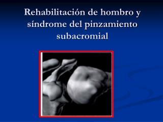 Rehabilitación de hombro y síndrome del pinzamiento subacromial