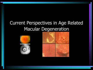 Current Perspectives in Age Related Macular Degeneration