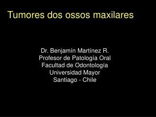 Tumores dos ossos maxilares