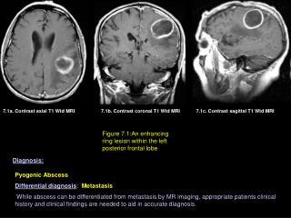 7.1a. Contrast axial T1 Wtd MRI