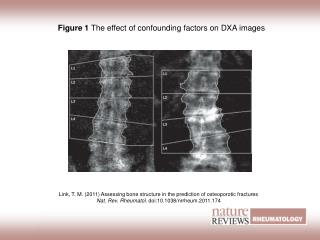 Figure 1  The effect of confounding factors on DXA images