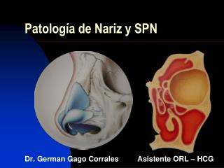 Patología de Nariz y SPN