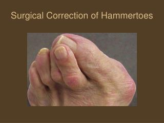 Surgical Correction of Hammertoes