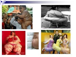 第九节 肥胖症 obesity