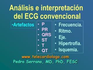 Análisis e interpretación  del ECG  convencional