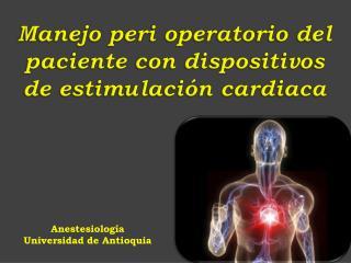 Manejo peri operatorio del paciente con dispositivos  de estimulación cardiaca