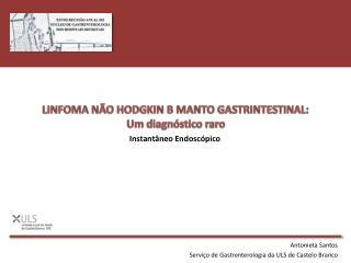 LINFOMA NÃO HODGKIN B MANTO GASTRINTESTINAL:  U m  diagnóstico raro
