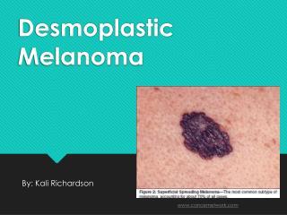 Desmoplastic Melanoma