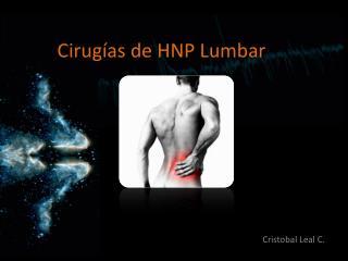 Cirugías de HNP Lumbar
