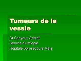 Tumeurs de la vessie