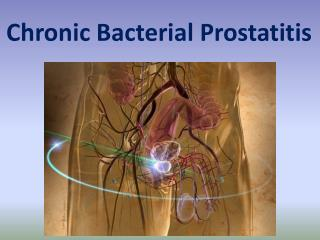 Chronic Bacterial Prostatitis (CBP)