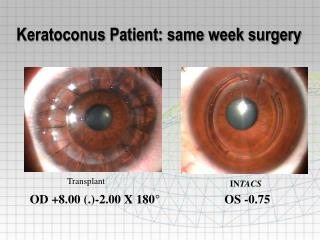Keratoconus Patient: same week surgery