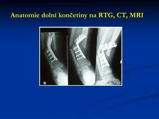 Anatomie dolní končetiny na RTG, CT, MRI