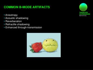 Common B-MODE ARTIFACTS