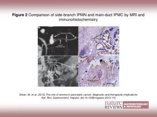 Figure 2 Comparison of side-branch IPMN and main-duct IPMC by MRI and immunohistochemistry