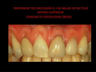 TRAITEMENT DES RECESSION CL I DE MILLER EN SECTEUR ANTERO-SUPERIEUR  CONJONCTIF EXPOSE/NON EXPOSE