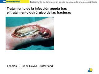Tratamiento de la infecci ón aguda  tras  el tratamiento quir úrgico de las fracturas