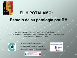 EL HIPOT LAMO:    Estudio de su patolog a por RM