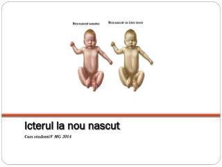 Icterul la nou nascut