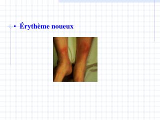 �ryth�me noueux