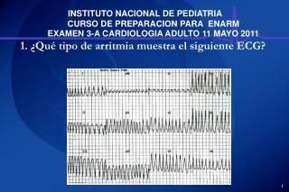 Fibrilacion auricular Taquicardia ventricular helicoidal