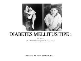 DIABETES MELLITUS T I PE 1