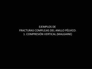 EJEMPLOS DE  FRACTURAS COMPLEJAS DEL ANILLO PÉLVICO: 1. COMPRESIÓN VERTICAL (MALGAINE)