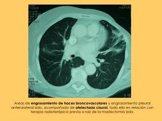 Bronquiectasias  con componente atelect�sico asociado en  L�bulo Medio , en segmento medial.