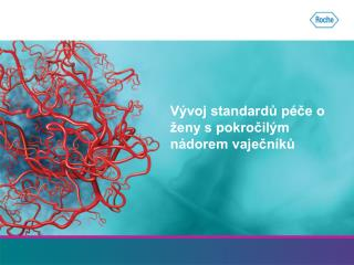 Vývoj standardů péče o ženy s pokročilým nádorem vaječníků