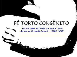 P� TORTO CONG�NITO