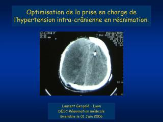 Optimisation de la prise en charge de l'hypertension intra-crânienne en réanimation.