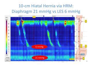 10-cm Hiatal Hernia via HRM: Diaphragm 21 mmHg  vs  LES 6 mmHg