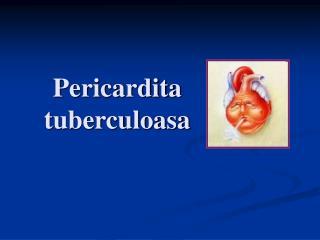 Pericardita tuberculoasa