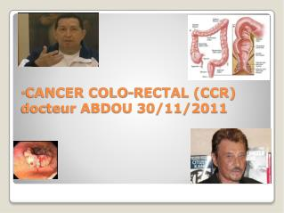 CANCER COLO-RECTAL (CCR) docteur ABDOU 30/11/2011
