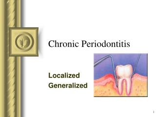 Chronic Periodontitis