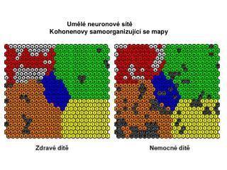 Umělé neuronové sítě Kohonenovy samoorganizující se mapy