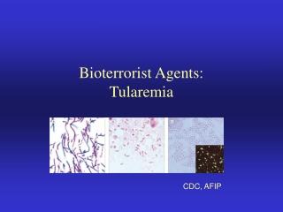 BW Agents: Tularemia