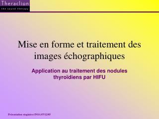 Mise en forme et traitement des images �chographiques