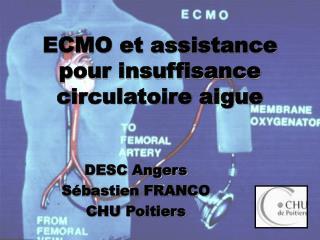 ECMO et assistance pour insuffisance circulatoire aigue