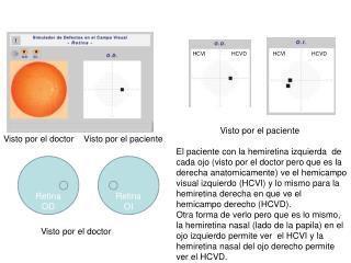 Retina OI