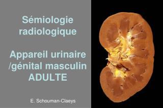 Sémiologie radiologique Appareil urinaire /génital masculin ADULTE