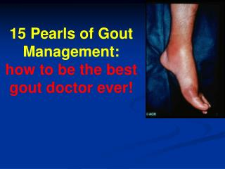 15 Pearls of Gout Management: how to be the best gout doctor ever!