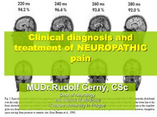 Clinical diagnosis and treatment of NEUROPATHIC pain
