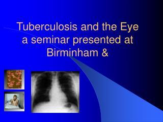 Tuberculosis and the Eye a seminar presented at Birminham &