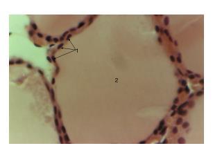 Colloid containing thyroglobulin / Stored thyroid hormone